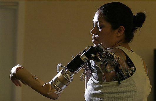 Рука-протез, управляемая с помощью мыслей