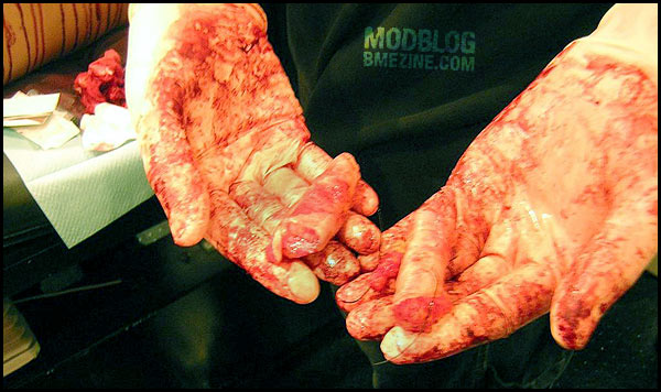 Удаление моддинга : Кровавая операция