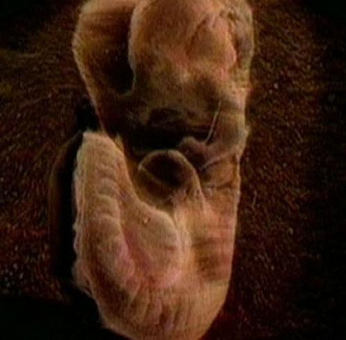 Ребенок в утробе матери