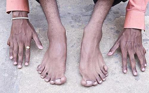 Ученые выяснили, почему у людей отрастают отрезанные кончики пальцев