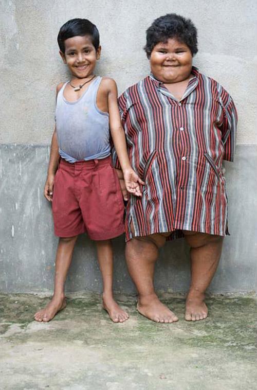 я очень толстая как похудеть