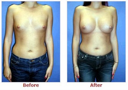 фото груди после пластической операции