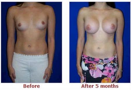 фото груди после увеличения