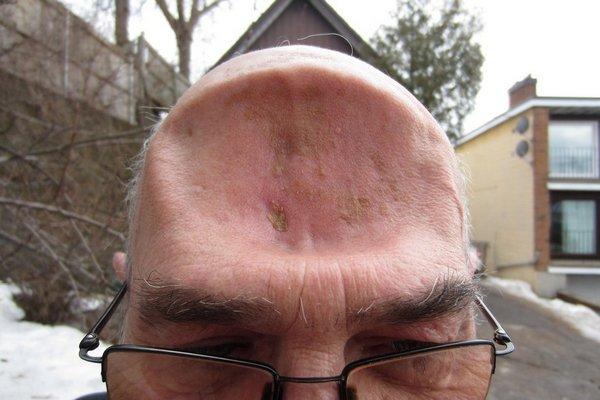 Что делать если человек разбил голову