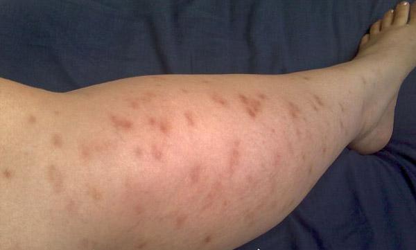 летняя аллергия лечение