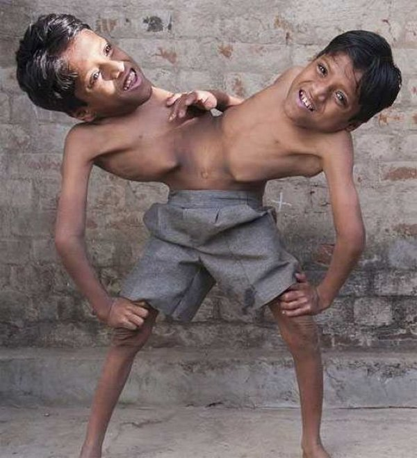 Сиамские близняшки проститутки