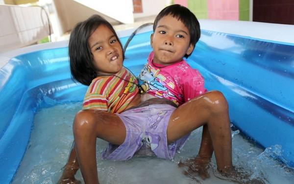 Сиамские близнецы из Таиланда