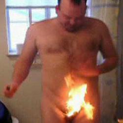 Видео - Эпиляция огнем