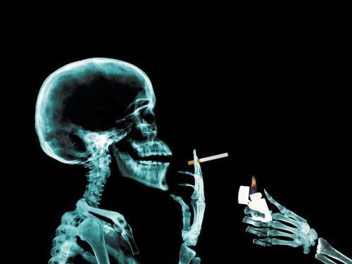 X-Rays : Прикольные скелеты
